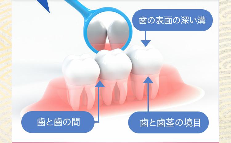 歯の表面の深い溝 歯と歯の間 歯と歯茎の境目